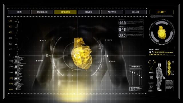 Human Heart X-Ray Scan Interface